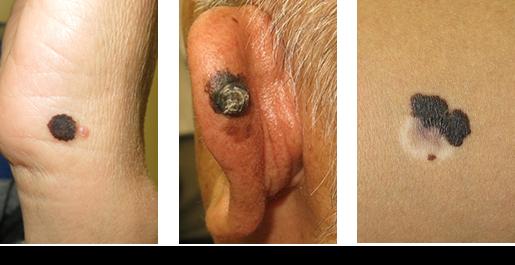 早期発見・早期治療が重要な「悪性黒色腫」ですが、すべての「ほくろ」が悪性黒色腫の疑いがあるわけではありません。